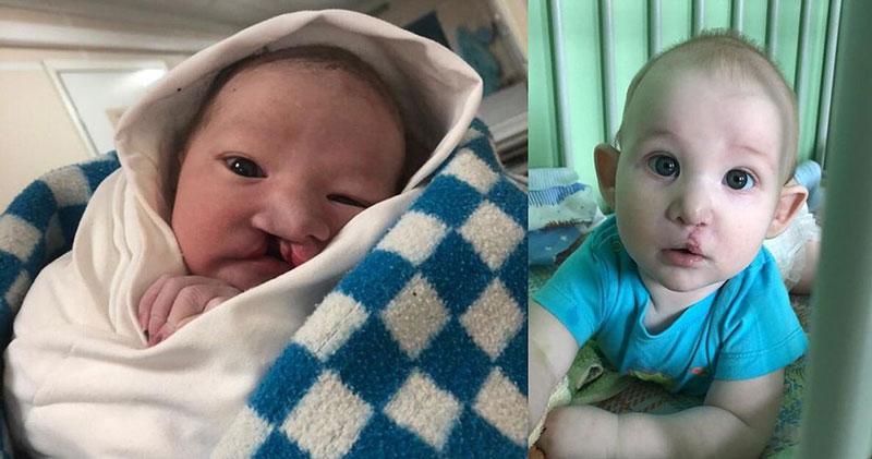Новосибирские врачи исправили лицо новорождённому мальчику
