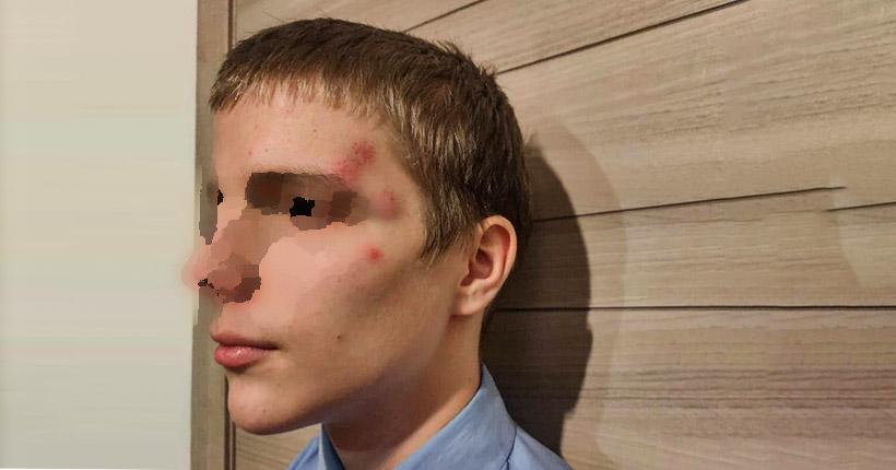 Наркоман напал на подростка в центре Новосибирска