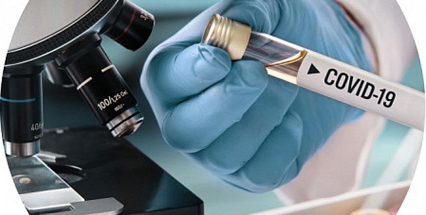 В Новосибирской области начали проводить тесты на антитела на IgG