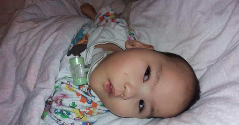 Двухлетний Ринат не может жить без постоянной очистки органов дыхания: нужна помощь