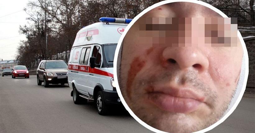 В Новосибирске мужчина загорелся, выпив в баре самбуку